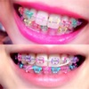 大人の歯列矯正費用はいくら?予算と感想