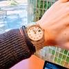 薄毛と腕時計のお話