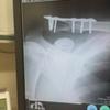 鎖骨骨折+4日目(入院2日目)
