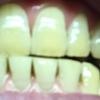 歯が白くなる歯磨きを使ってみる アパガード プレミオ プレミアムタイプ