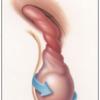 急性陰嚢症の診断と治療