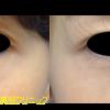 脱脂術をしました。目の下のクマ治療です。