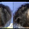 女性の薄毛治療をしました。AGF(自己脂肪由来幹細胞成長因子)注射です。