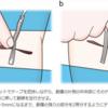 創傷処置の方法