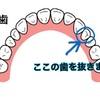 歯列矯正記録〜3本目の抜歯〜