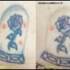 圧倒的症例数 ピコレーザー(エンライトン)でタトゥーを除去をしています。 2回治療後です。3色