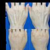 「ハンドリフト」手の脂肪注入(コンデンスリッチ脂肪注入)をして手の若返りをしました。