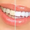 ホワイトニングは歯医者でやったほうがいい?専門店?