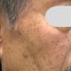 男性例:フォトフェイシャルと炭酸ガスレーザーで複合的なシミ治療