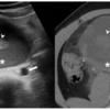 case138:11歳男児、突然発症の右上腹部痛(Ann Emerg Med. 2021 Apr;77(4):462-468.)