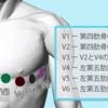 心電図電極つける色の覚え方