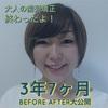 【大人の歯列矯正1302日目】顔の変化を公開!アラサー歯列矯正3年半のビフォーアフター画像