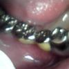 ブリッジ脱離の再補綴・歯根の短い困難症例03