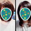 髪の伸びる速さ〜8ヶ月での比較