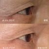 ただの逆さまつげとは違う。下眼瞼内反症の治療。