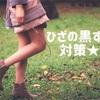 【保育士の悩み】ひざの黒ずみの治し方・予防対策法