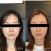 3D小顔矯正の効果