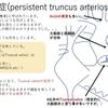 総動脈幹症(Persistent truncus arteriosus)について Truncusの成り立ち 疾患25