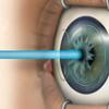 レーシックの術後の視力や症状は?7年経過した現在の状況。