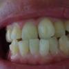 歯ぎしり対策、噛み合わせ改善の為にSmile TRU(スマイルトゥルー)で歯列矯正に挑戦