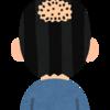 薄毛(ハゲ)進行レベル判定と対策チェックを、無料で簡単に行う方法