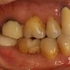 長い差し歯は治せます。オールセラミックの最前線