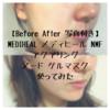 【Before After 写真付き】MEDIHEAL メディヒール NMF アクアリング ヌード ゲルマスク 使ってみた【美容成分2倍 口コミ 効果 使い方】