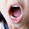乳歯さん、さようなら・・・「こうして悲劇は繰り返される」の巻。