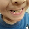 いつ始める?子供の歯列矯正〜9歳、もう待ったなし!