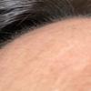 AGA治療の副作用による「産毛」がヤバイ。出身地が南下するレベル