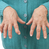 歯周病菌が引き起こす関節リウマチとは?
