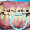 歯科〉#根面被覆術 実施