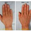 ハンドリフト(手の若返り)。自分の脂肪でふっくらした手に若返ります。手術1ヶ月後の写真です。