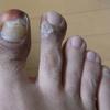汗疱状湿疹(8)