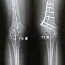 はと X脚 変形性膝関節症 骨切り記録