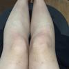 アントロポゾフィー治療開始から1か月と1週間が経過しました。