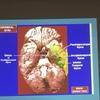 脳のフォーマッティング・解剖学・生理学の学び