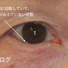 ただの逆さまつげとは違う。下眼瞼内反症の治療。の続き