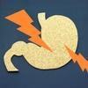 PPIやH2ブロッカーなどの胃酸分泌抑制薬は酸化マグネシウムと併用できない!?