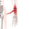 ボルダリング 手首の痛み 対応方法を考えるー実践編ー