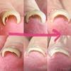 巻爪❗️痛い❗️目に見える効果‼️