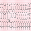 case144:術後に高血圧と頻脈を呈し急変した61歳男性(N Engl J Med. 2021 Jun 3;384(22):2145-2152.)