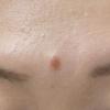 額のホクロ除去例