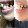 歯並び比較、抜歯跡1