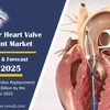経カテーテル心臓弁置換市場は、2025年末までに80億になる