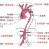 大動脈解離の診察のポイントと緊急度