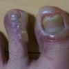 汗疱状湿疹(いぜん水疱が広がる)