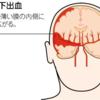 くも膜下出血で警告頭痛が起こる理由