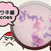 【アクネ菌は実はニキビ肌の味方!?】上手に付き合って肌改善!