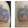 新着ピコレーザービフォーアフター タトゥーはこう消えていく。腕・5色